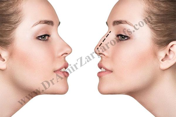 آیا با ظاهر بینی خود مشکلی دارید و احساس خوبی ندارید؟